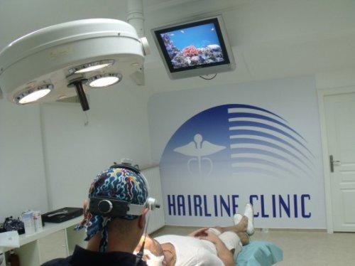 Клиника по пересадке волос HFE