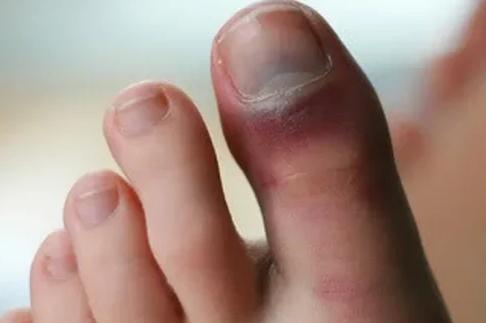 Ушиб пальцев на ноге