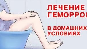 Лечим геморрой