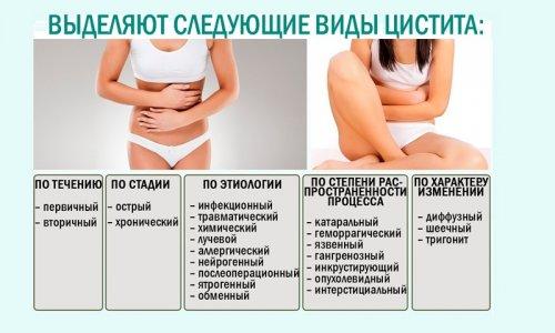 Современные подходы к лечению цистита